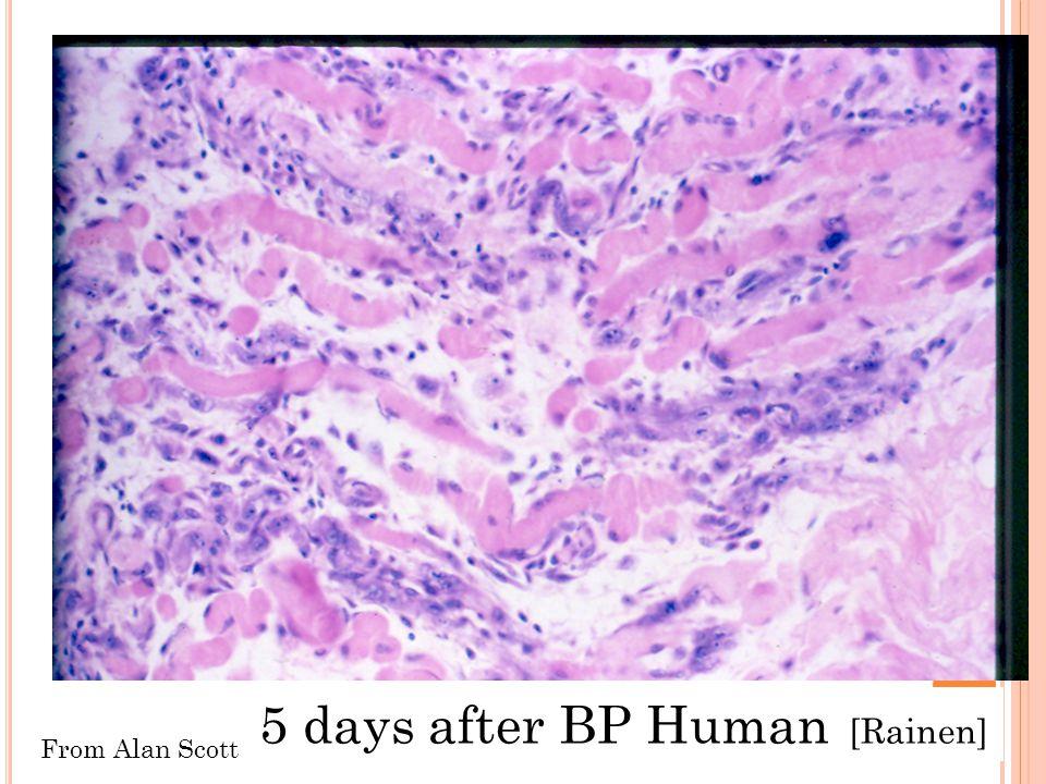 5 days after BP Human [Rainen]